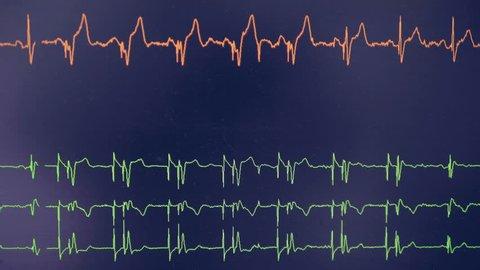 Real cardiogram. Cardiograph oscilloscope show heart beat rate on a screen.