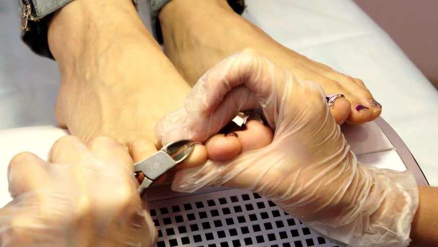 Treatment of ingrown toenails. Ingrown nail. The doctor is a podiatrist. Hardware pedicure. Podiatry.