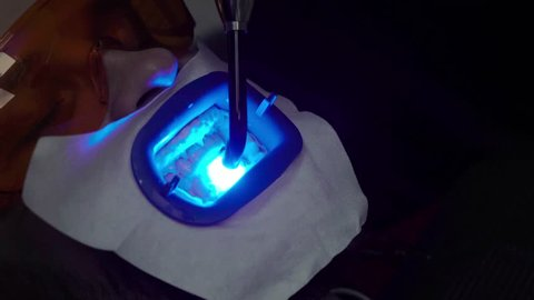 Dentist stomatologist whitening teeth for patient in medicine dental clinic with uv lamp