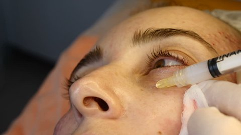 Cosmetician in gloves making face lifting injection to area around eyes. female client gets facial beauty procedure in healthcare clinic. liquid thread injection. Botox. collagen