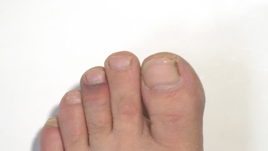 The bruise on the toe on white background