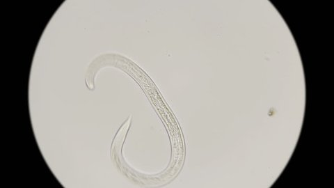 the nematode worm under a microscope