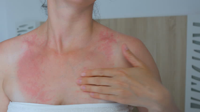 Woman scratch the itch with hand, Neck. Red spots on the neck, allergies, psoriasis, insect bite. Malaria. Sunburn. Sun burn | Shutterstock HD Video #1011519092