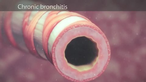 Asthma Symptoms, Bronchiole