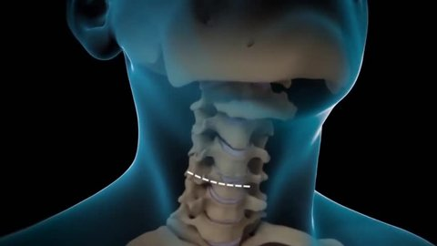 Artificial Disc For Cervical Disk Replacement