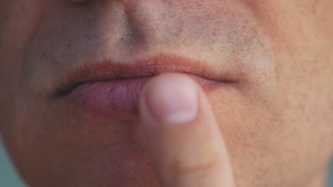 A young man with herpes on his lips.Herpes. Lip treatment. Close up. A man puts a cream on his lips. Viral disease.
