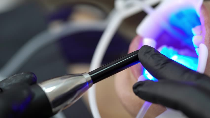 Patient in dental clinic and uv lamp on chair | Shutterstock HD Video #1013315252