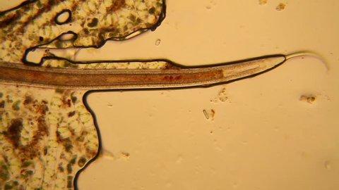 Fresh pond water plankton and algae at the microscope. Nematode