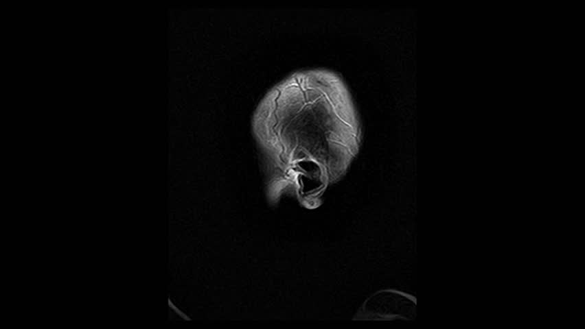 Computed medical tomography MRI upscaled scan of healthy young female head. Side view. Discrete slices. Original black-and-white on black background.