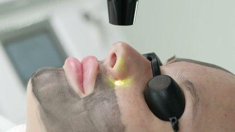 Procedure carbon peeling. Laser rejuvenation and treatment of problematic skin. Closeup