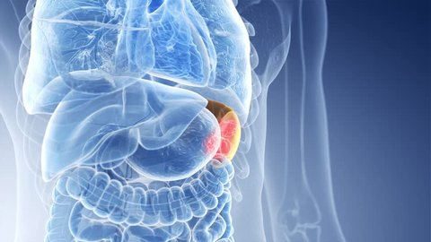 3d rendered medically accurate animation of spleen cancer