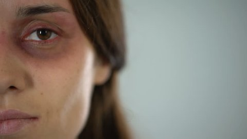Sad lady with bruised face looking at camera, violence, gender discrimination