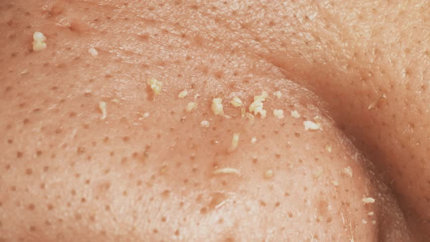 Non groomed and ditry male skin with acnes, macro | Shutterstock HD Video #1017794812