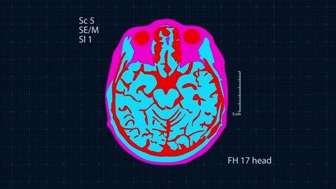 Brain MRT scan. Full HD medical background. Seamless looping