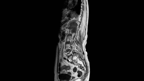 MRI OF THE LUMBOSACRAL SPINE The findings are probably TB spine as Marked reduction in height of L1 and L2 vertebral bodies, showing abnormal outline.