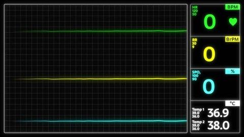 Stylized EKG Flatline, Green. Close up on pixelated heart rate monitor screen / electrocardiogram (EKG or ECG) beeping then flatlines. Shallow depth of field 4k