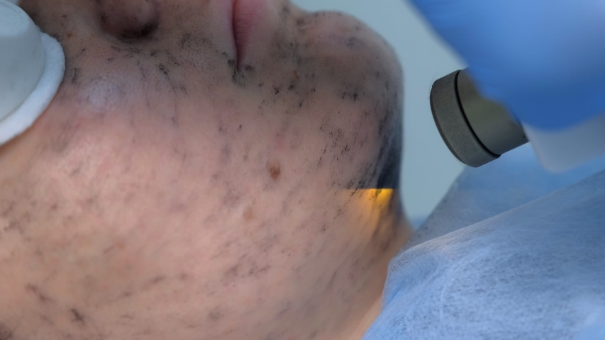 Portrait of woman on laser carbon face peeling procedure in beauty clinic, chin closeup view. Hardware cosmetology treatment. Process of photothermolysis, warming skin. Facial skin rejuvenation. | Shutterstock HD Video #1046914132