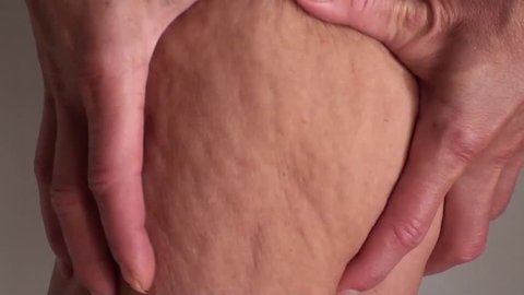 Demonstrating cellulite on thigh close up