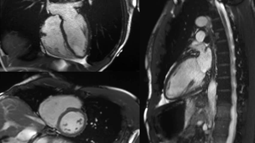 heart beating - Cardiac MRI with contrast, 3 angles