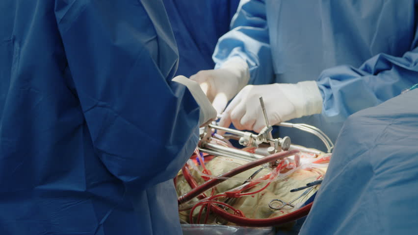 surgeons working during open heart surgery - 4K stock video clip