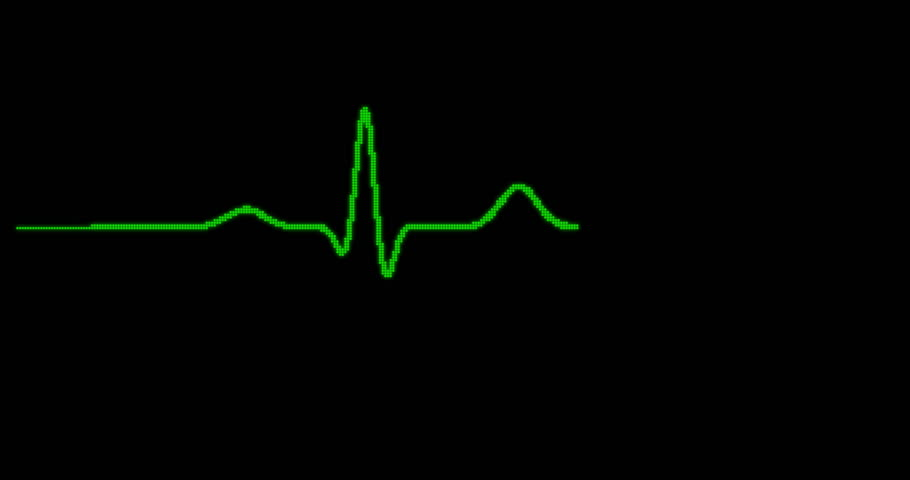 EKG Monitor. Green digital pixelated ECG monitor shows the heart beat. The heart stops for three seconds and starts again. (av23243c)