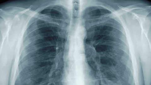 Chest x-ray with transparent lungs.  (loop ready animation)