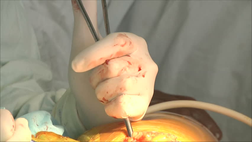 Surgery, sterile operating 5 | Shutterstock HD Video #1820612