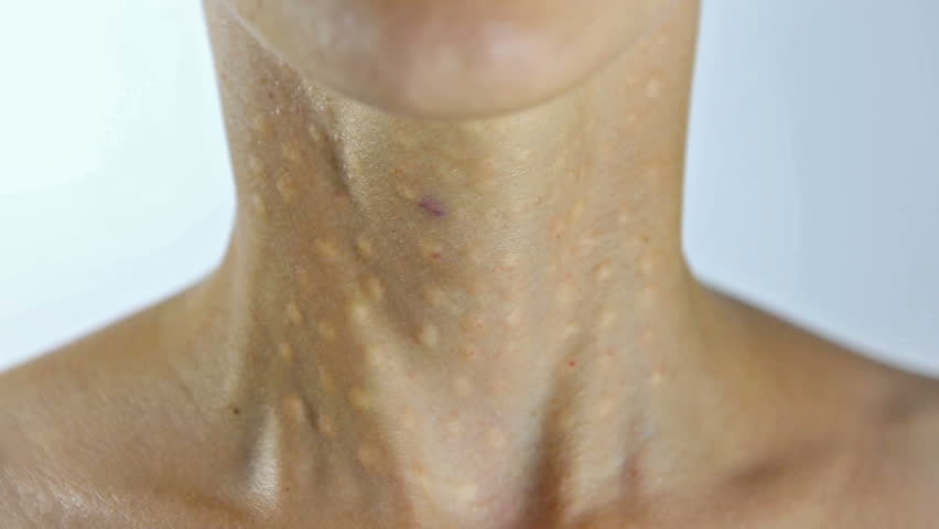 Woman Getting a Beauty Injection in her neck and decollete area. Young Woman in Cosmetic Clinic after Lifting Hyaluronic Biorevitalisation. Beauty Treatment - Papules after Hyaluronic Injection