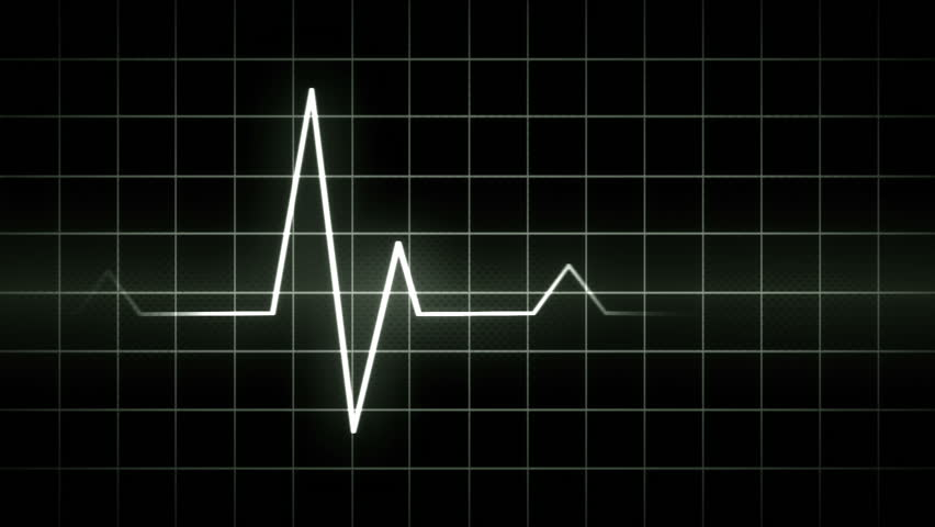 looping EKG display electrocardiogram pulse real waveform