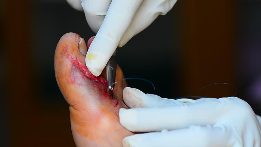 Header of laceration