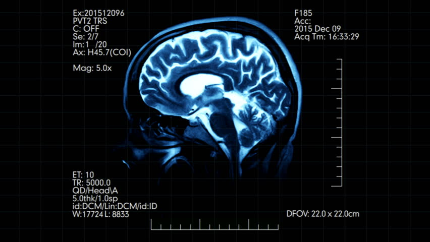 Two animated pictures of mri brain scan on one medical display mri brain scan profile animation with medical data hd stock video clip sciox Choice Image
