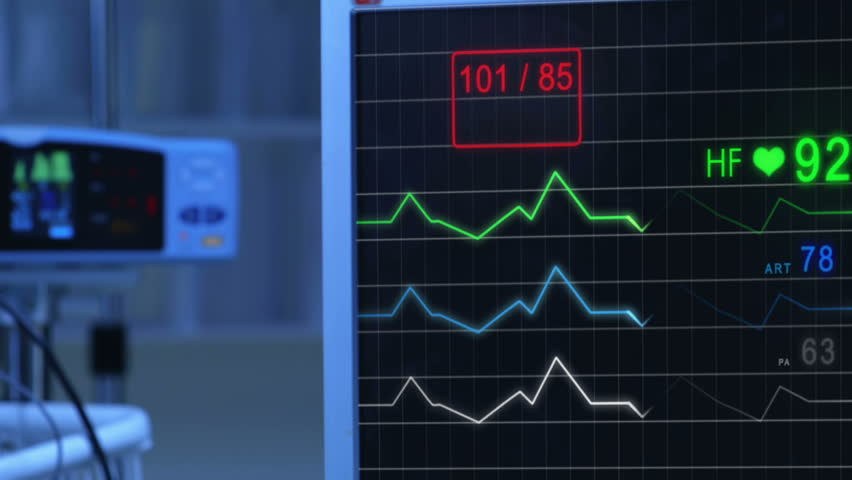 E.C.G (Pulse checking) Monitor. Monitor that shows heartbeat activity. Cold atmosphere. | Shutterstock HD Video #24345152