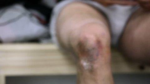 An athlete's knee injury