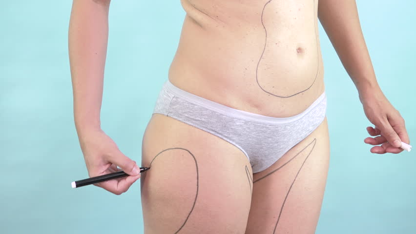 Woman drawing body plastic surgery lines to slim and reduce fat. Caucasian female torso with correction mark for cosmetic liposuction of hips and thighs. Body control, weight loss, cellulite removal