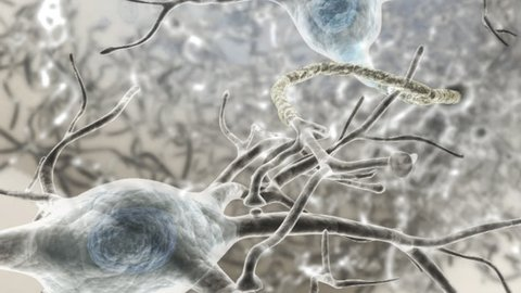 Microscopic view of 3D rendered neurones within the human brain. Anatomical modelling process of post-synaptic potential processing