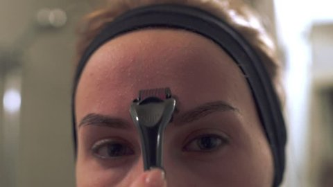 Close up young woman using a derma roller for micro needling therapy face. Mesoroller for micro facial massage. Roller, microneedle, mesotherapy, rejuvenating. Facial treatment at home
