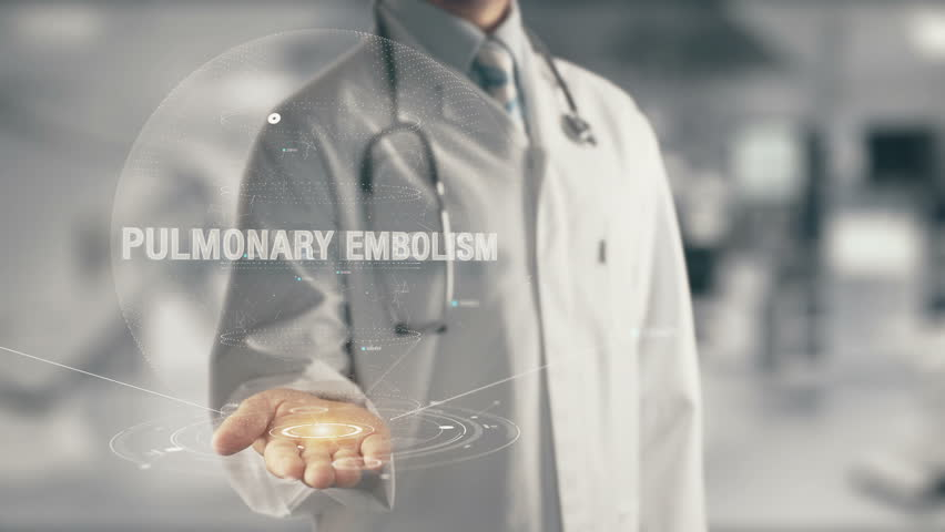 Doctor holding in hand Pulmonary Embolism | Shutterstock HD Video #29681692