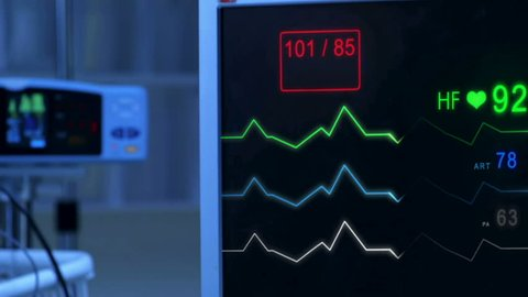 Cinemagraph of pulse checking E.C.G Monitor. Monitor that shows heartbeat activity. Cold atmosphere.