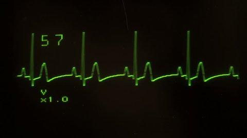 EKG defibrillator screen heart flatlines - with sound, HD 1080
