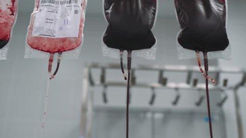 BELARUS, MINSK - NOVEMBER 15, 2017: Hospital, blood in packages, process of purification and filtration of donor blood, November 15 in Belarus.