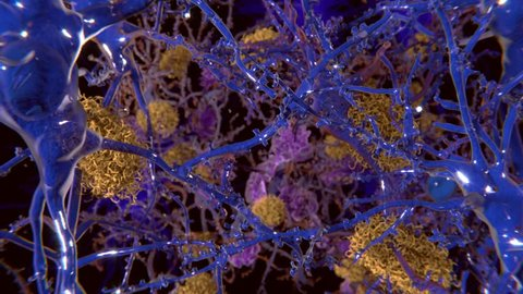 Alzheimer disease: The foreground cells are healthy neurons. The yellow structures are amyloid plaques damaging neurons. The violet cells are microglia cells that phagocyte and degrade sick neurons.