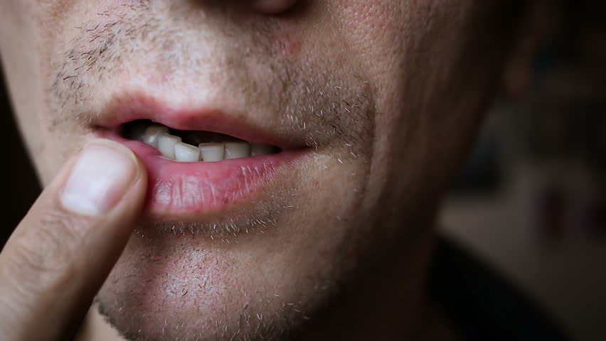 Stomatitis mouth ulcer | Shutterstock HD Video #34328272