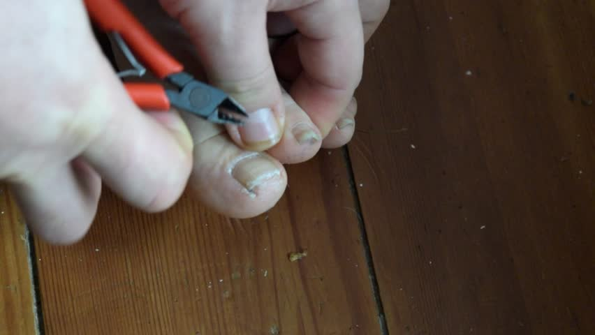Stock Video Clip of Toenails with fungal infection. Sick nail ...