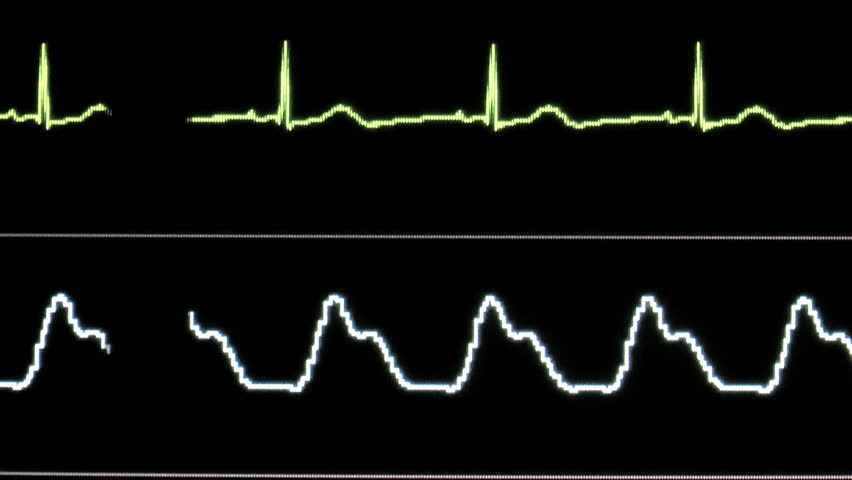 Vital signs monitor displays EKG heart rate, oxygen saturation, close up, in steady waves that flatline as patient dies. 1080p