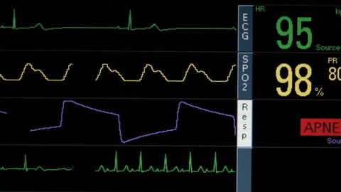 Time Lapse, Hospital monitor displays patient critical signs failing, ending in heart failure, flat line, death. 1080p