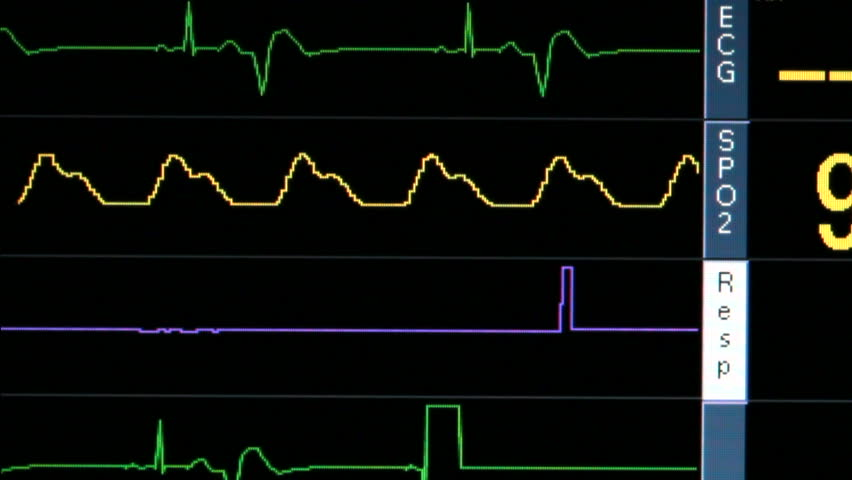 Stock video of ekg monitor in icu unit show 2997439 shutterstock visually similar footage ccuart Choice Image