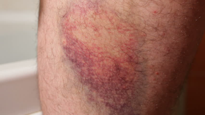 Bruise. Processing healing cream. | Shutterstock HD Video #4368152