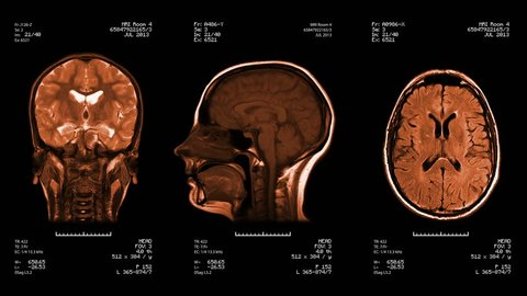 Three head views of MRI scan. Loopable. Amber. See more color options in my portfolio.