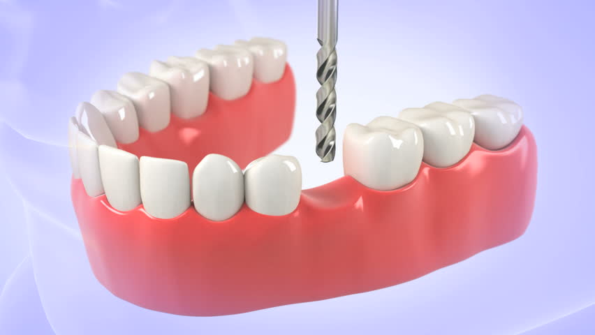 High quality 3D animation showing the installation process of dental implants
