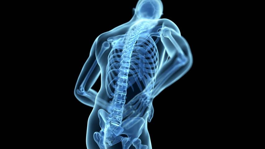 medical animation of a man having a backache